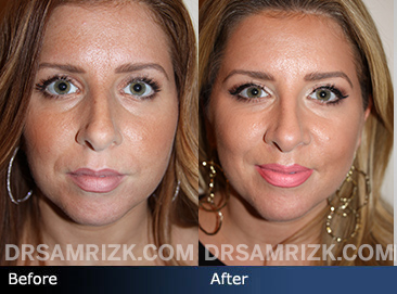 Nose Surgery and Chin Implant