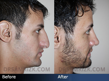 26 yo male rhinoplasty patient who complains of bump and drooping nose underwent rhinoplasty and tip support and rotation shown 1 year following surgery.