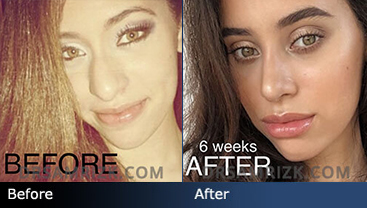 Female patient who had an Open Rhinoplasty. Photos shown here are 6 weeks after surgery.
