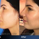 Patient Story: Rhinoplasty with Dr. Sam Rizk