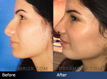 Female patient who had a Primary Rhinoplasty. Photos shown here are 6 days after surgery. Bump Removal, Tip Refinement, Lifting hanging tip, narrowing bridge and tip. Patient still swollen.