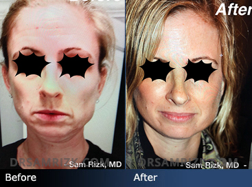 45 year old patient shown 6 weeks after Facelift and Necklift