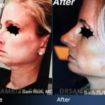 Patient Story: Facelift with Dr. Sam Rizk