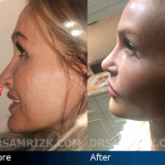 Patient Story: Revision Rhinoplasty with Dr. Sam Rizk