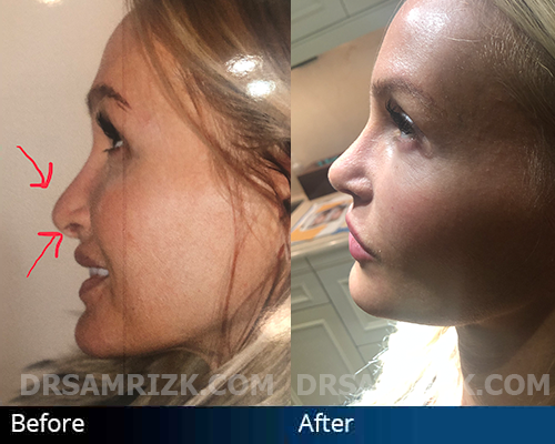 This patient had 3 prior rhinoplasty surgeries and underwent a 4 the revision endonasal rhinoplasty with Dr. Rizk to improve her profile. Patient has retracted nostrils, hanging columella and pollybeak as indicated on the preoperative picture with arrows. Postoperative picture shows correction of hanging columella and pollybeak as well as improvement in retracted nostrils with rim grafts
