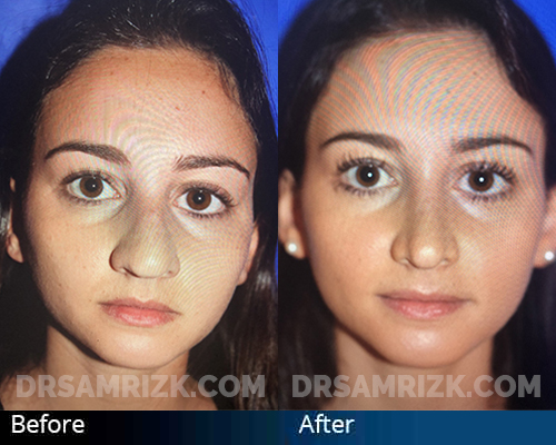 22 yo female one year after rhinoplasty to reduce and refine nose tip, remove bump, and deproject nasal tip.