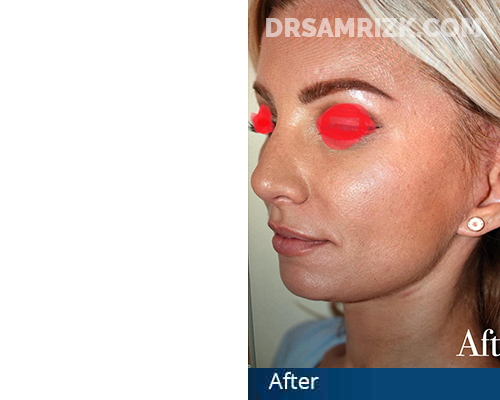 40 year old patient with jowl and loose neck. Patient shown 3 months after surgery.