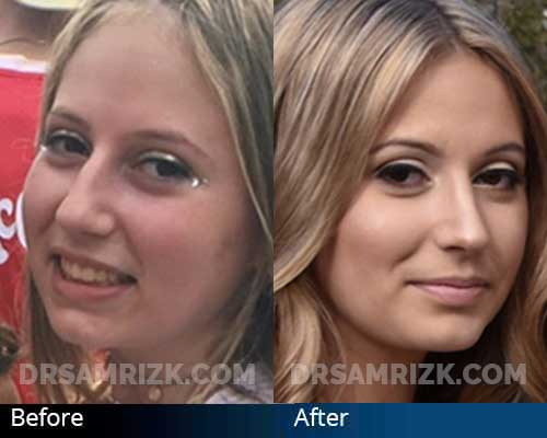 19 yo patient who underwent rhinoplasty, chin implant and neck liposuction happy with her results sent her own pictures.
