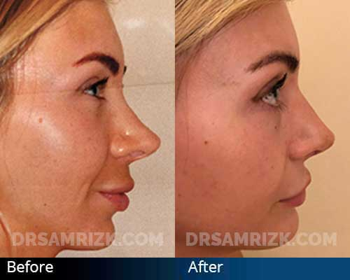 Revision Rhinoplasty and Chin Implant. 28-year-old patient is shown 1 week after having revision rhinoplasty to deproject nose and raise scooped bridge. A subtle small chin implant can balance profile in an excessively over projected nose even when its deprojected.