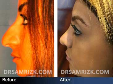 17-year-old patient shown 1 year after Rhinoplasty to raise dropping bump.