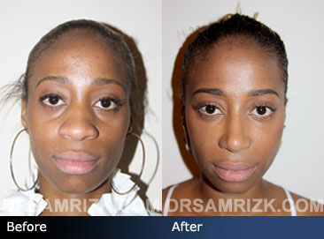 Female patient ethnic rhinoplasty before & after pics