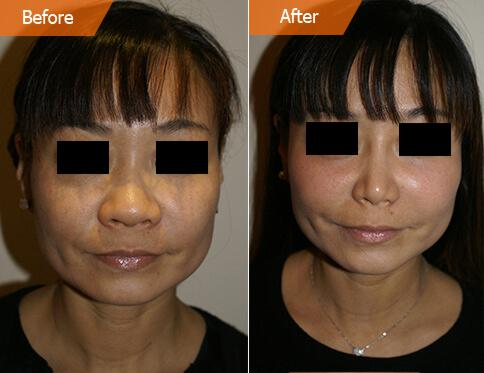 Woman's face, Before and After Asian Rhinoplasty Treatment, front view