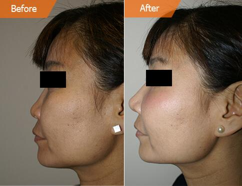 Woman's face, Before and After Asian Rhinoplasty Treatment, left side view