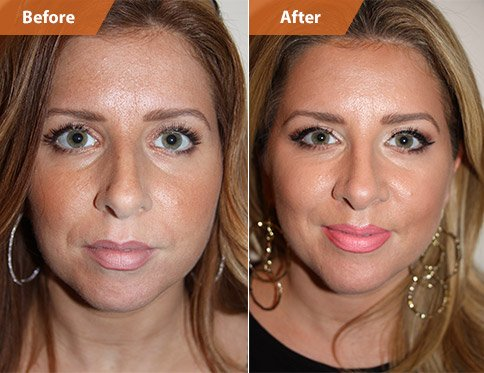 Before and After Chin and Cheek Surgery Treatment, female patient, front view