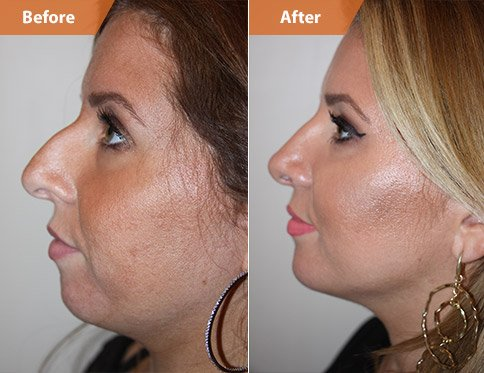Patient before and after chin/cheek surgery side view