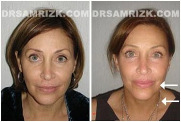 photos Before and After Facelift