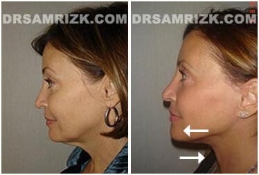 photos Female patient  Before and After Facelift