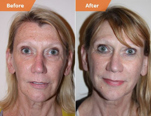 Woman's face, Before and After Fat Grafting Treatment, front view