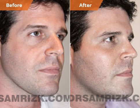 Male face, Before and After Fat Grafting Treatment, oblique view