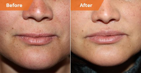Patient before and after Lip Enhancement
