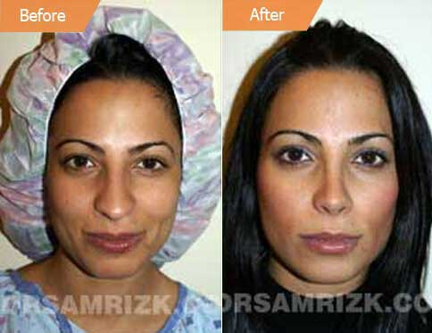 Female Face, Before and After Rhinoplasty Treatment. This 26-year-old female patient had a drooping and long nose, front view
