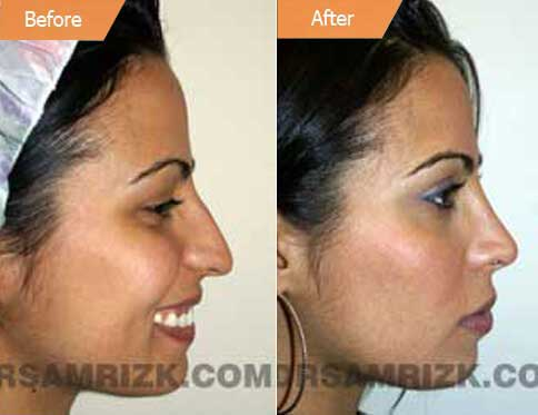 Female Face, Before and After Rhinoplasty Treatment. This 26-year-old female patient had a drooping and long nose, side view