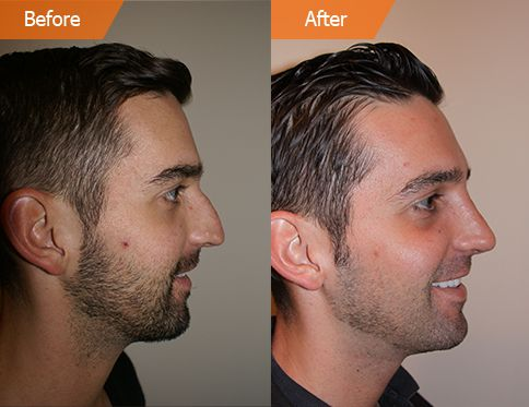 Male face, Before and After Plastic Surgery Treatment, left side view, patient 1