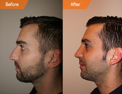 Male face, Before and After Plastic Surgery Treatment, right side view, patient 1