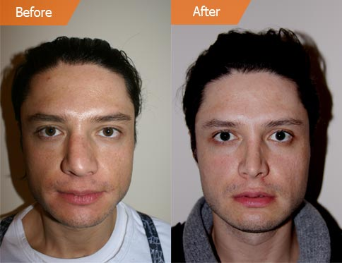 Male face, Before and After Drooping Nose Treatment, front view
