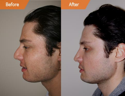 Patient before and after rhinoplasty side view
