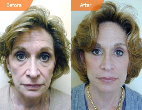 Female Before and After Eyelid Surgery