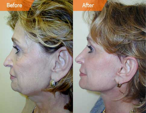 Blepharoplasty New York, Eyelid Surgery Manhattan, Eye Lift NYC