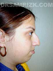 Female before Chin Surgery - side view