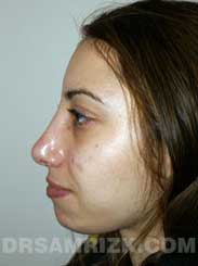 Female after Nose Surgery and Chin Implant - side view