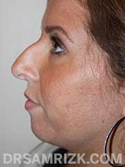 Female patient before Nose Surgery and Chin Implant - side view