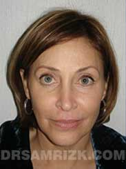 Female before Eyelid Surgery - photo