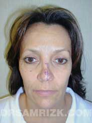 image Female before Eyelid Surgery - frontal view