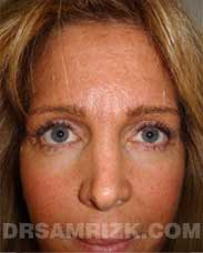 female photo after blepharoplasty