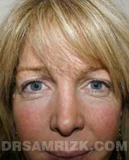 female photo before blepharoplasty