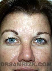 patient before Eyelid Surgery - front view