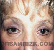 eyelid surgery blepharoplasty after pictures
