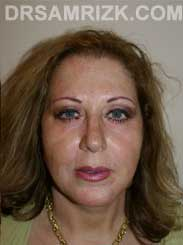 Female Postoperative blepharoplasty - photo