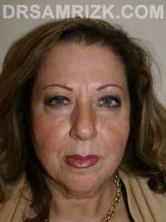 Female Preoperative blepharoplasty - photo