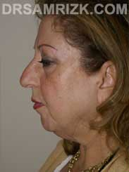 picture female before eyelid surgery