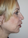facelift before and after images New York