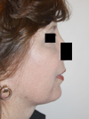necklift before after pictures
