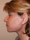 necklift before and after images