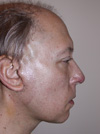 facelift 1 Week After Surgery