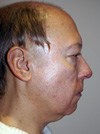 facelift before and after photo Surgery