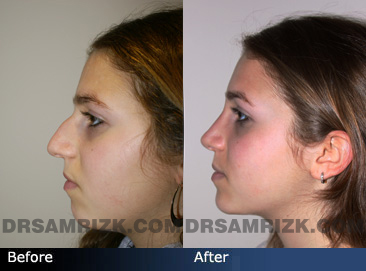 Nose Job before and after side photo